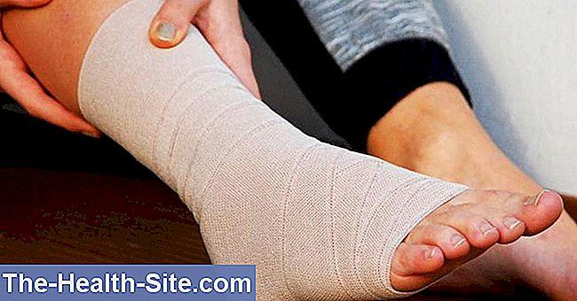 Deteriorarea ligamentelor articulației gleznei drepte - Dureri de cot la întinderea brațului