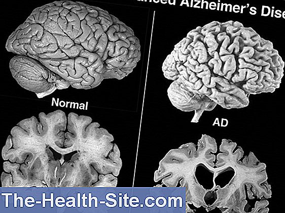 Alzheimers: new drug cleans brain