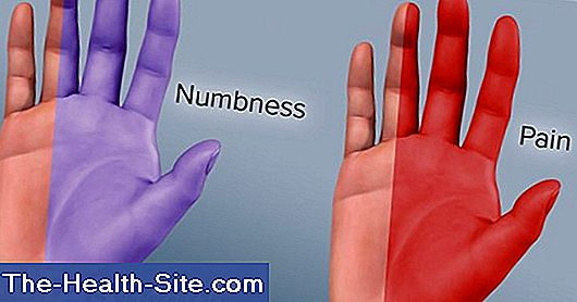 Carpal tunnel syndrome - symptoms