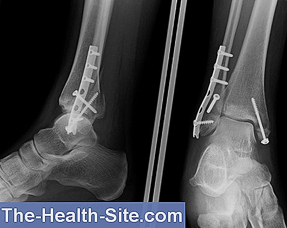 Fibula Fracture And Tibia Fracture: Development