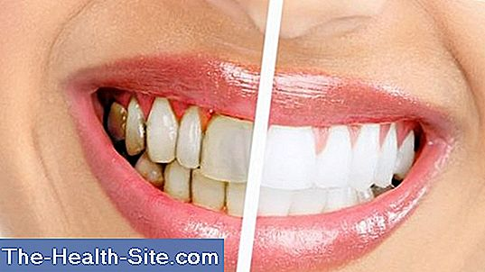 Gingivitis - treatment