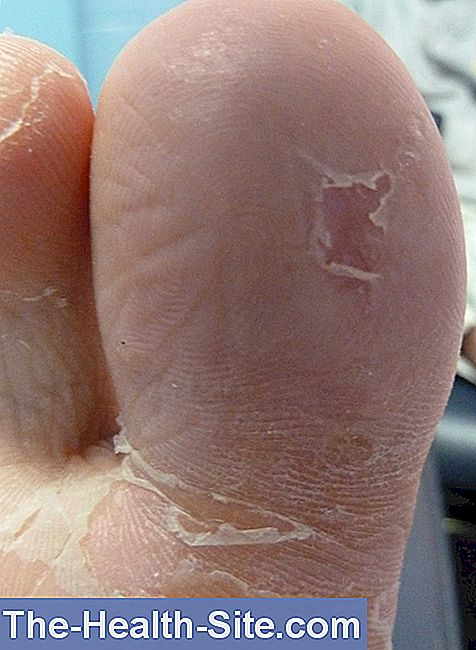 Plantar Warts: Recognize And Treat Warts On The Foot