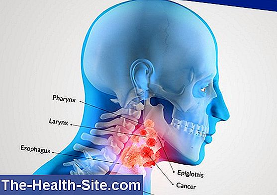 Throat cancer - symptoms
