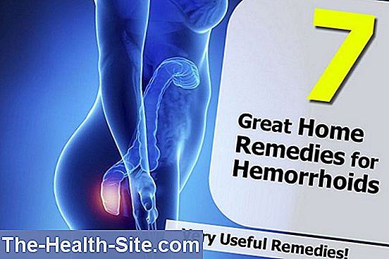 Hemorrhoids - home remedies