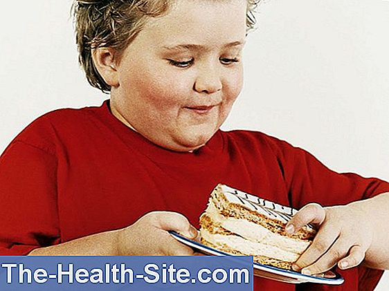 Overweight in children