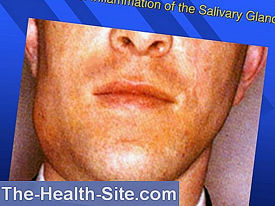 Salivary Inflammation: Symptoms & Therapy 💊 Scientific