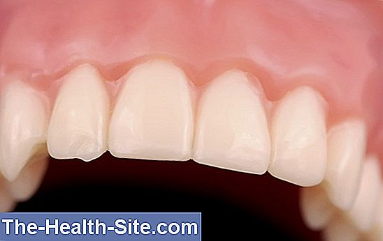 Periodontitis promotes cancer