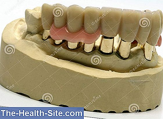 Telescopic prosthesis everything important to the denture