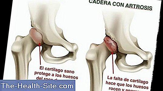 Codos: Función, Anatomía Y Enfermedades 💊 Científico-Práctico ...