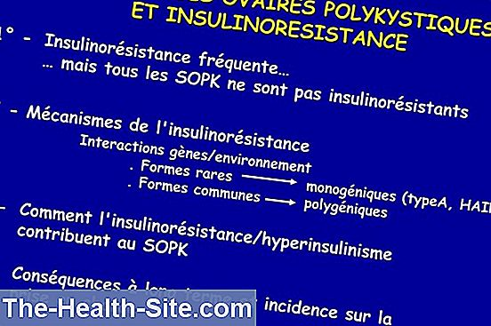 Syndrome des ovaires polykystiques