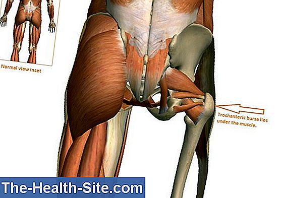 Bursitis - hip
