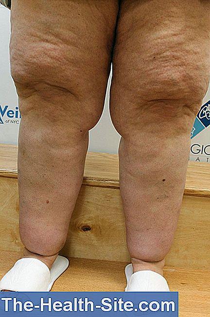 scăderea în greutate ajută limfedemul 10 moduri de a arde grăsimea
