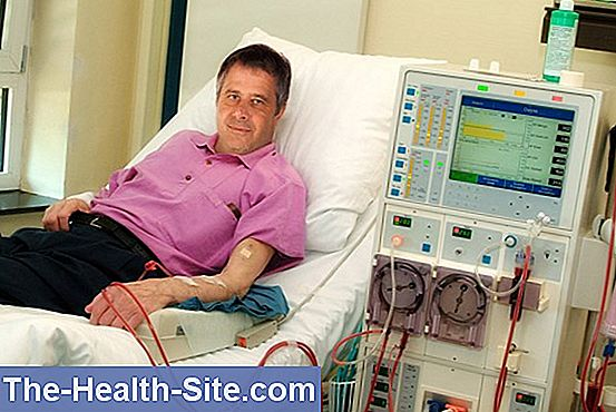 pierderea pacienților cu dializă în greutate