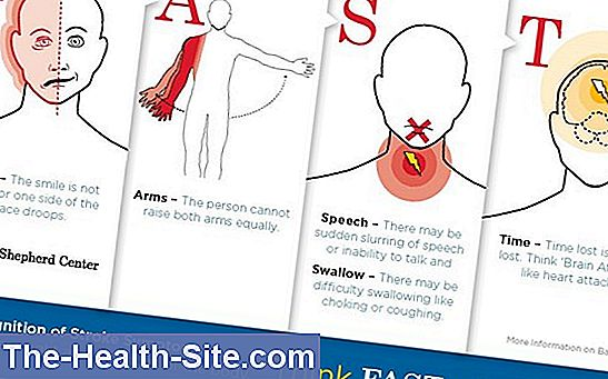 symtom vid stroke