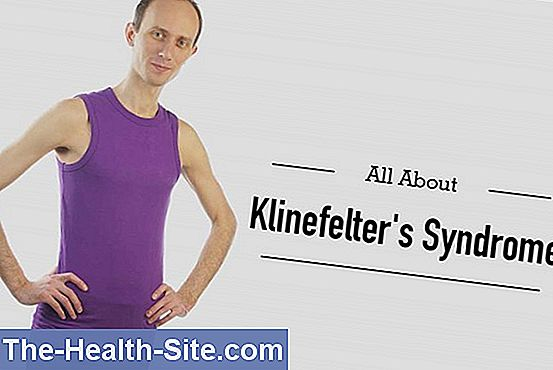 Klinefelters syndrom