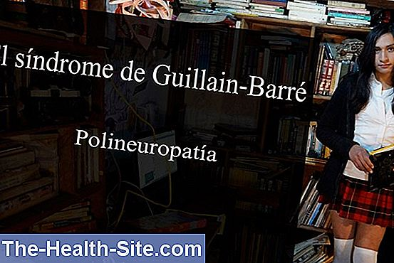 Síndrome de guillain-barre