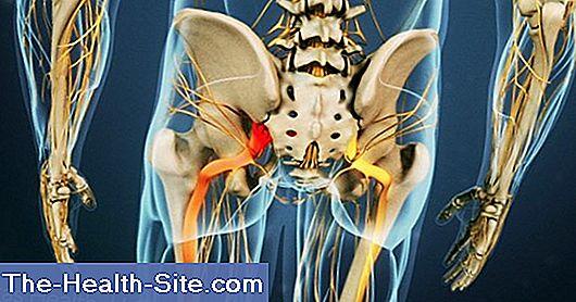 deteriorarea articulațiilor din cauza vătămărilor sportive