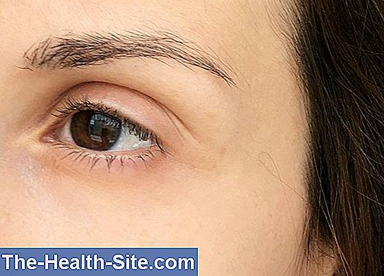 Prevenirea ridurilor din jurul ochilor