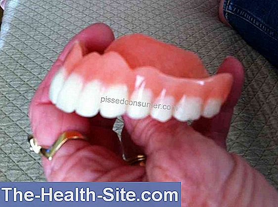 Dentures - costs