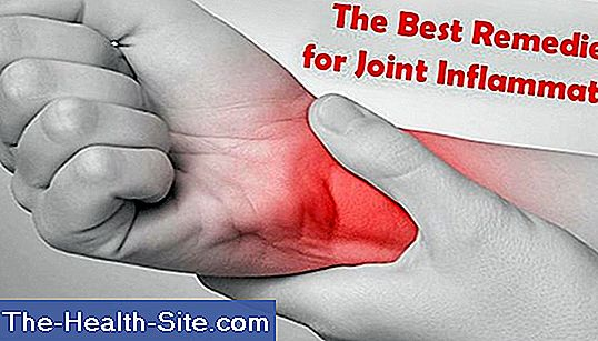 Arthritis (joint inflammation)