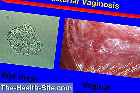 Bacterial vaginosis - vaginal infections