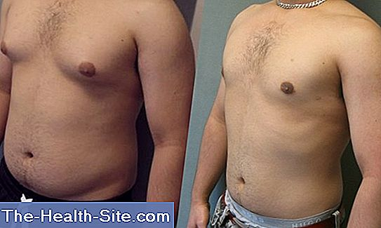 Gynecomastia - mammary gland growth in men