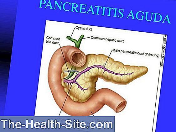 Pancreatitis aguda (pancreatitis aguda)