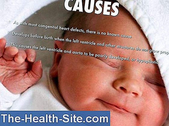 Hypoplastic left heart syndrome - congenital heart defects