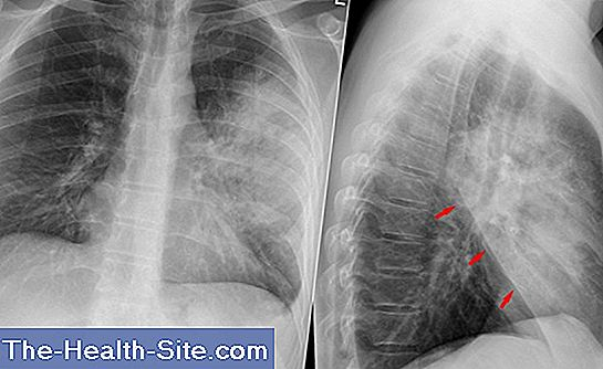 complicații după pneumonie pe articulații