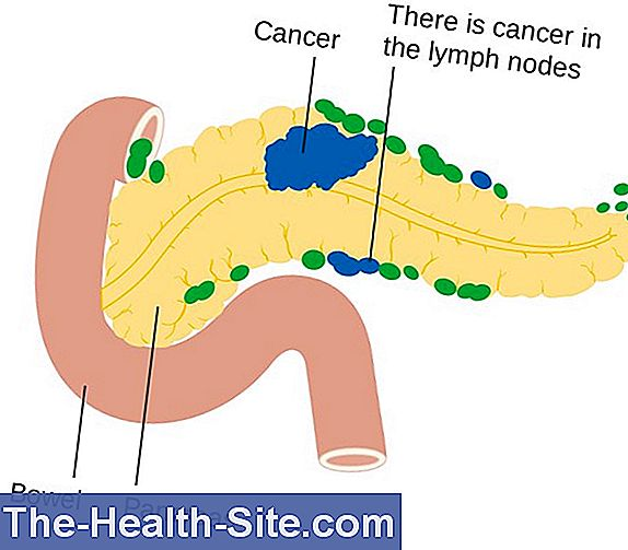 Cancer pancreatic (cancer pancreatic)