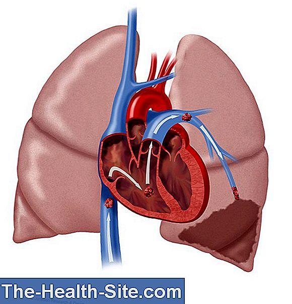 slăbire embolie pulmonară)