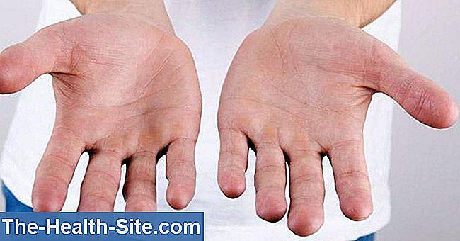 numele bolii articulației degetelor